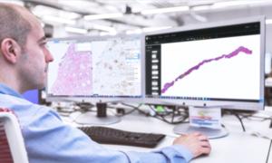 Nền tảng AI lập phác đồ theo dõi điều trị ung thư