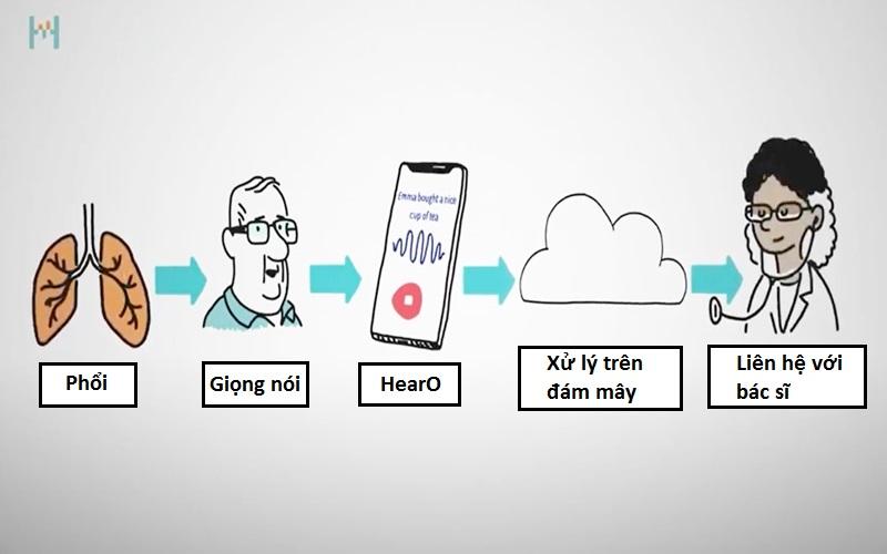Quy trình hoạt động của ứng dụng HearO. Ảnh: Cordio Medical.